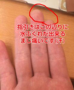 指弾きは人差し指と中指に水ぶくれが出来る